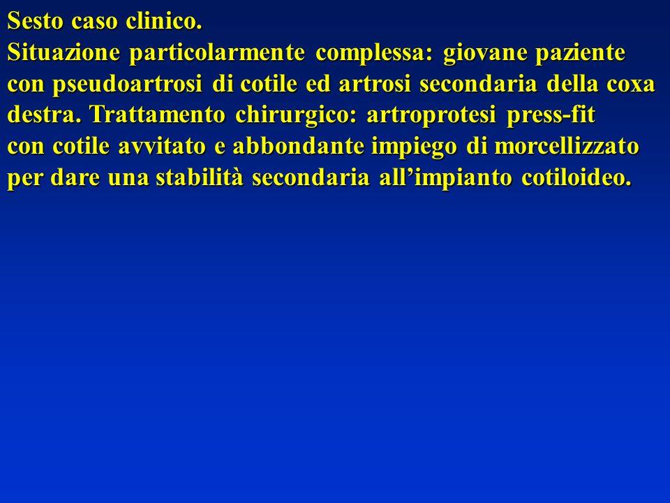 Sesto caso clinico. Situazione particolarmente complessa: giovane paziente. con pseudoartrosi di cotile ed artrosi secondaria della coxa.