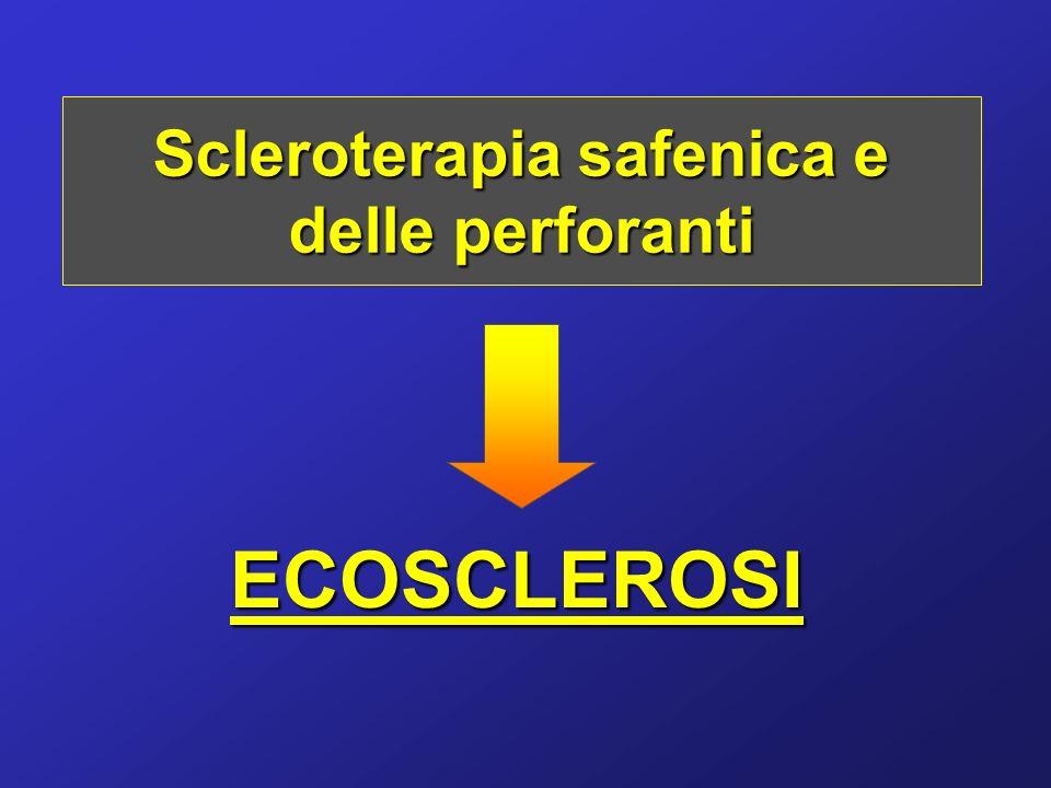 Scleroterapia safenica e delle perforanti