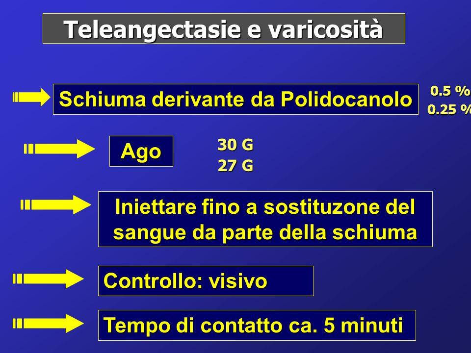 Teleangectasie e varicosità
