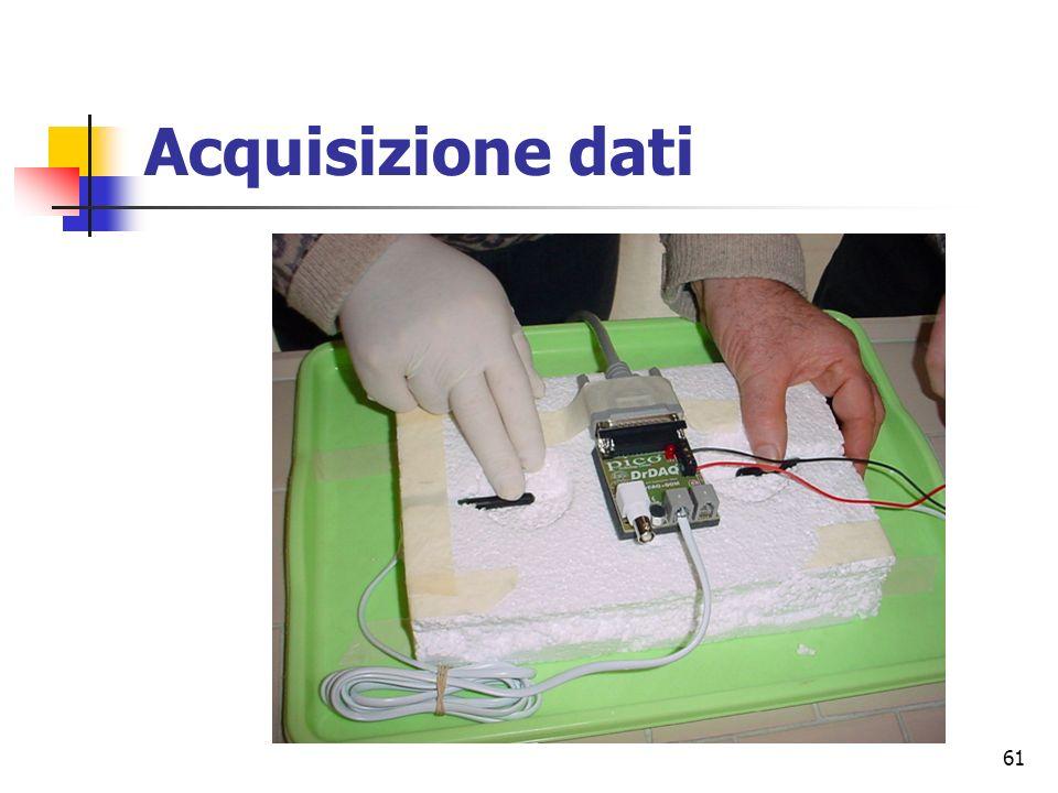 Acquisizione dati