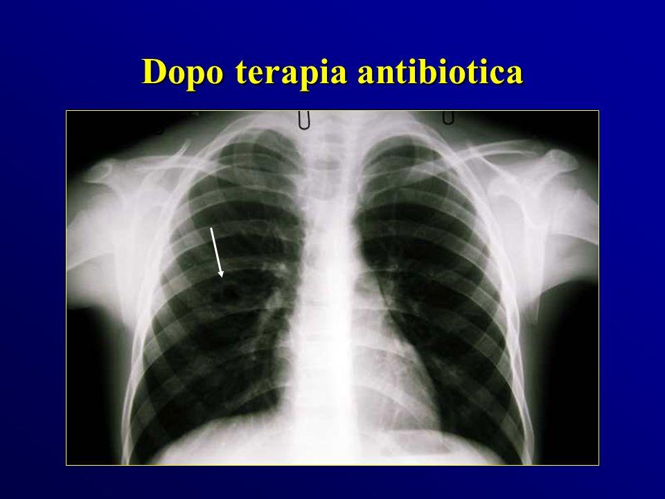 Dopo terapia antibiotica
