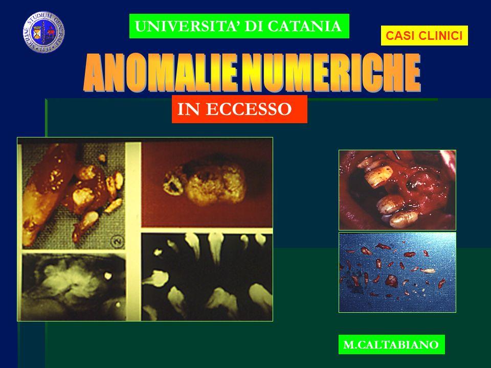 ANOMALIE NUMERICHE IN ECCESSO UNIVERSITA' DI CATANIA CASI CLINICI