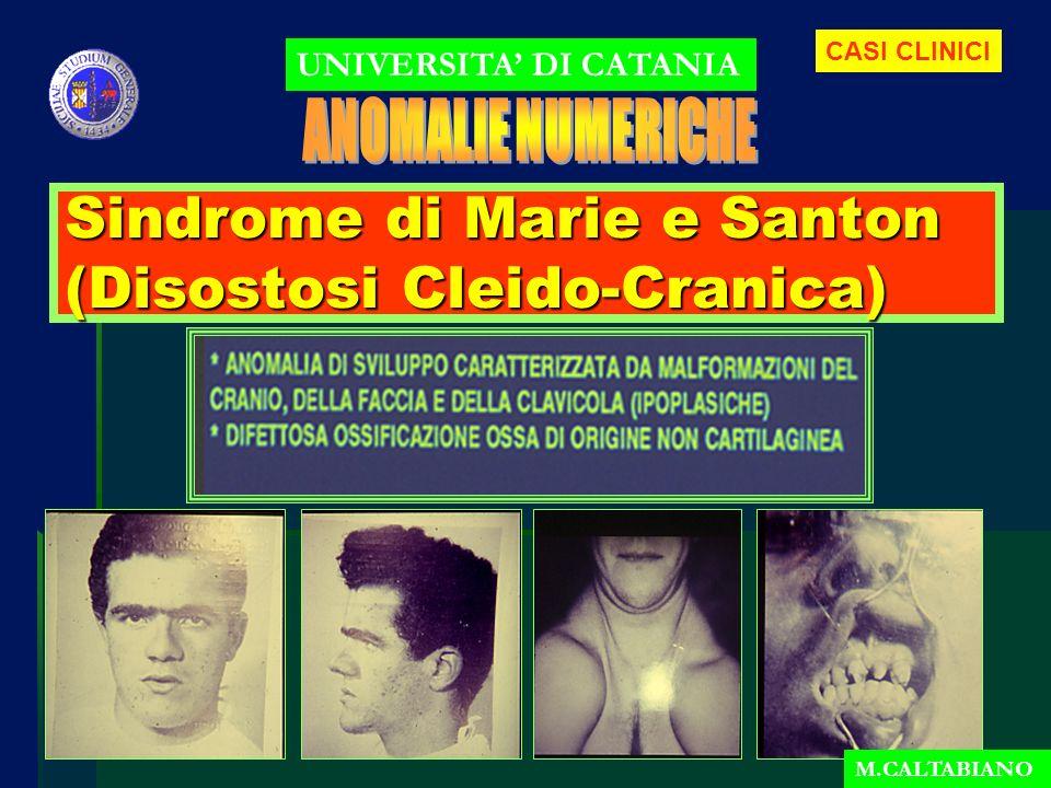 Sindrome di Marie e Santon (Disostosi Cleido-Cranica)