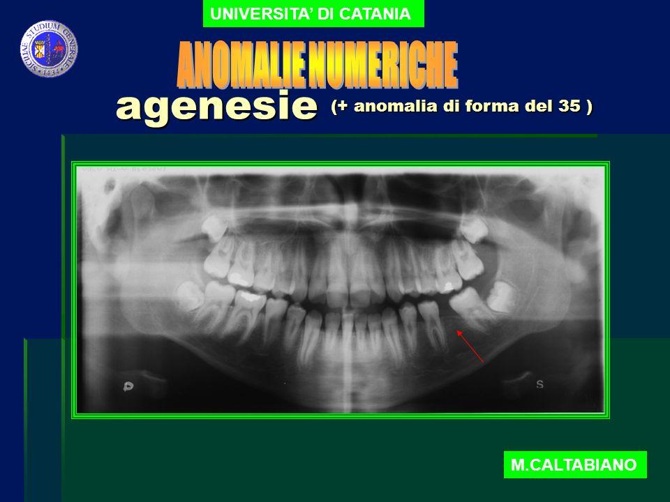 agenesie ANOMALIE NUMERICHE UNIVERSITA' DI CATANIA