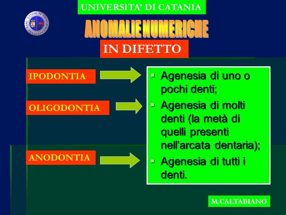 ANOMALIE NUMERICHE IN DIFETTO Agenesia di uno o pochi denti;