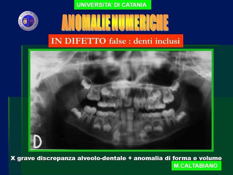 ANOMALIE NUMERICHE IN DIFETTO false : denti inclusi
