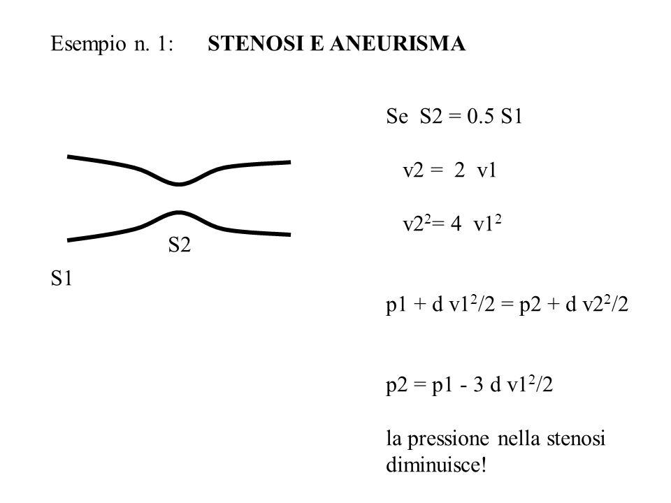 Esempio n. 1: STENOSI E ANEURISMA
