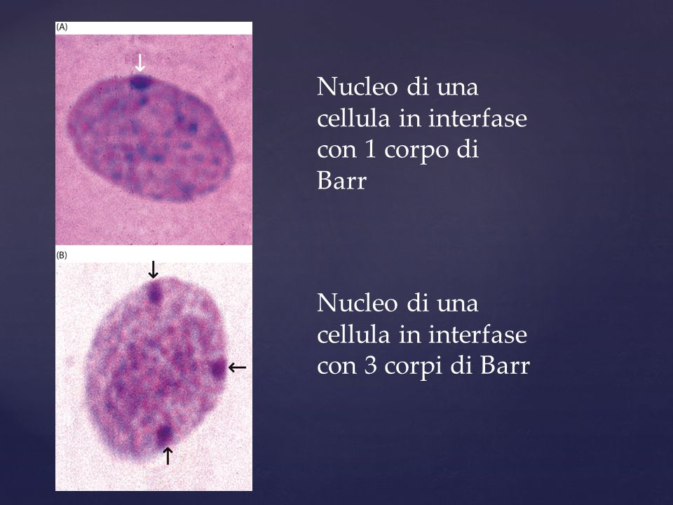 Nucleo di una cellula in interfase con 1 corpo di Barr