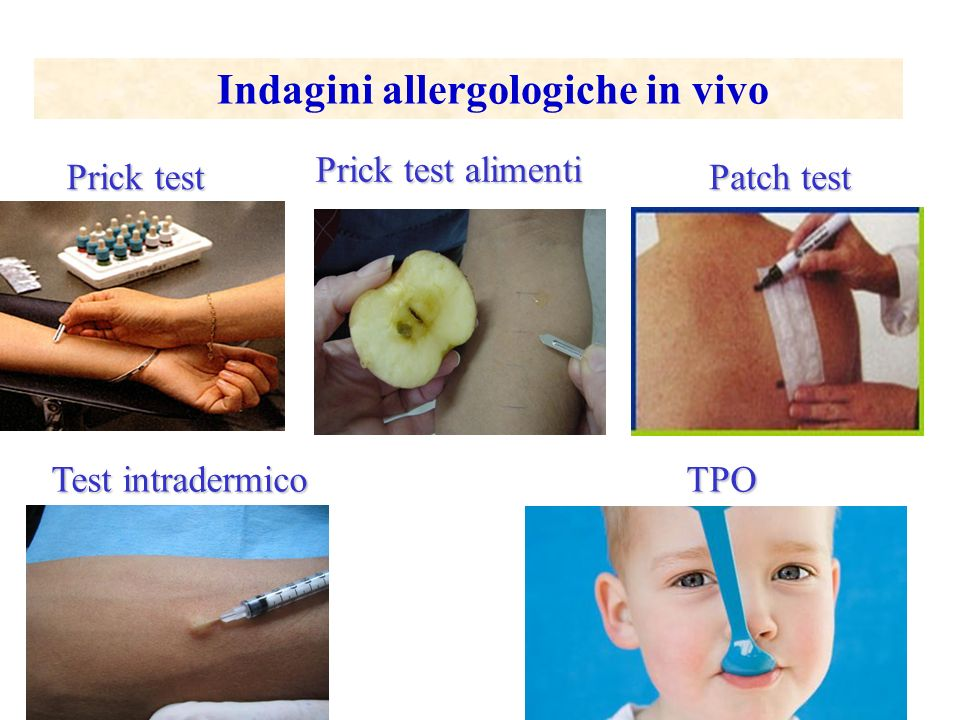 Indagini allergologiche in vivo
