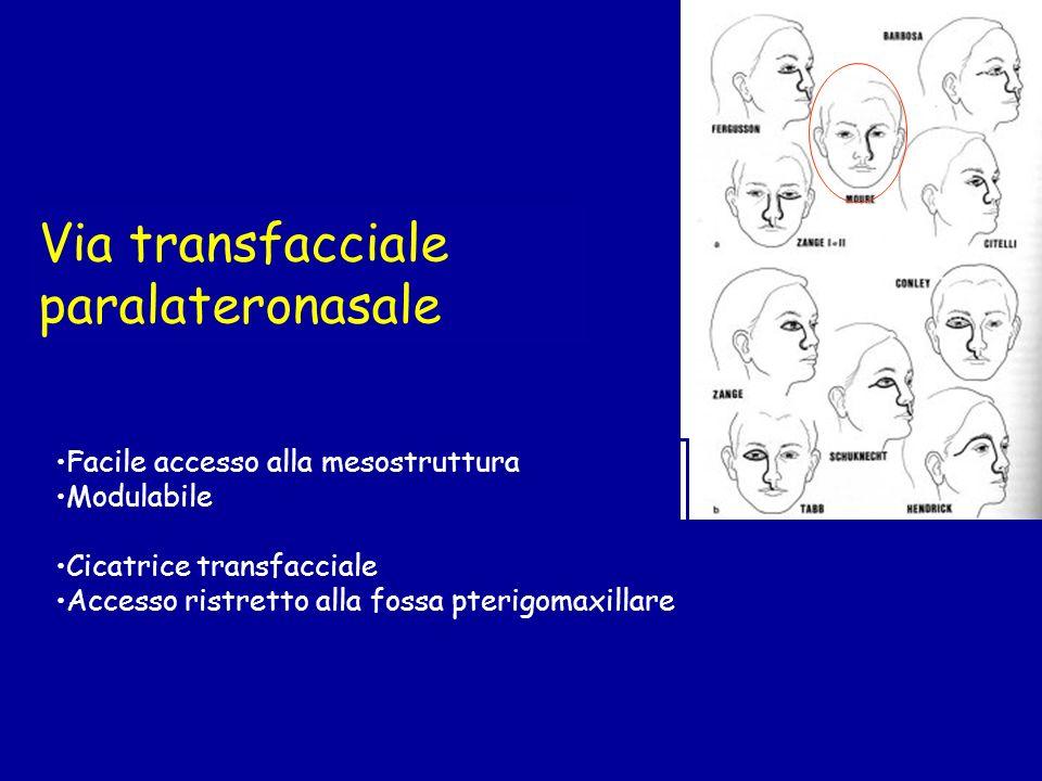 Via transfacciale paralateronasale