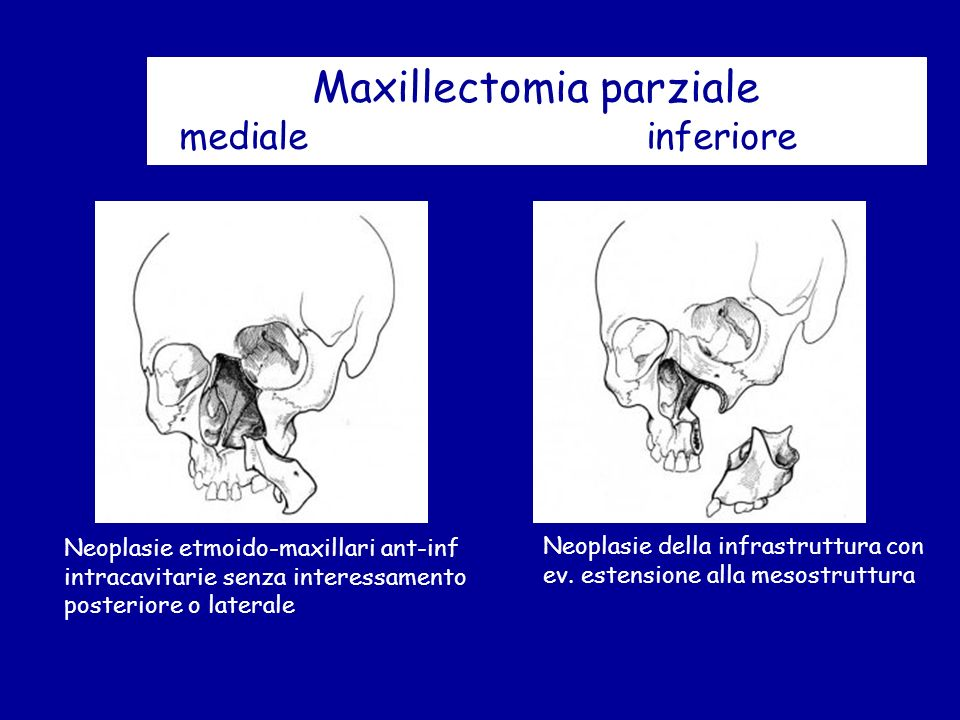 Maxillectomia parziale