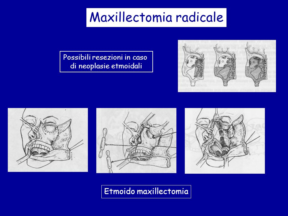Maxillectomia radicale