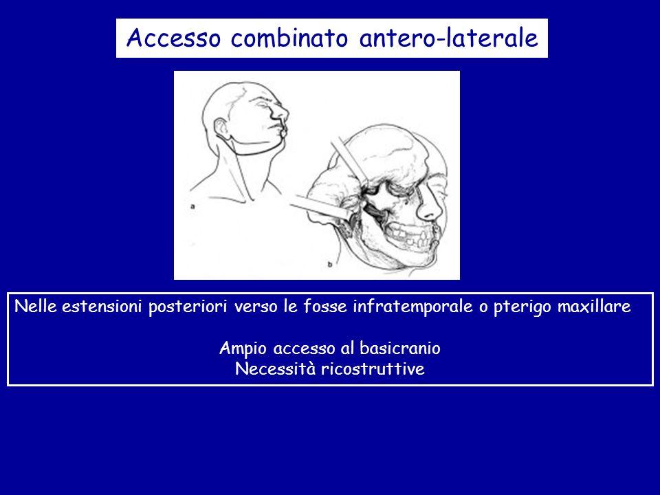 Accesso combinato antero-laterale
