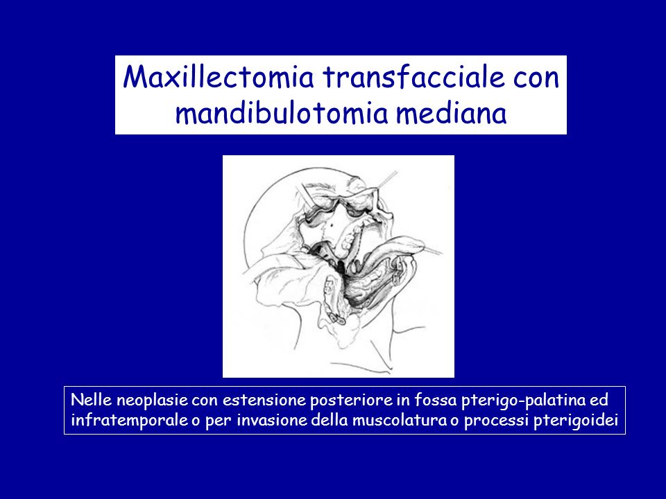 Maxillectomia transfacciale con mandibulotomia mediana