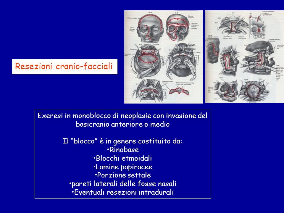 Resezioni cranio-facciali