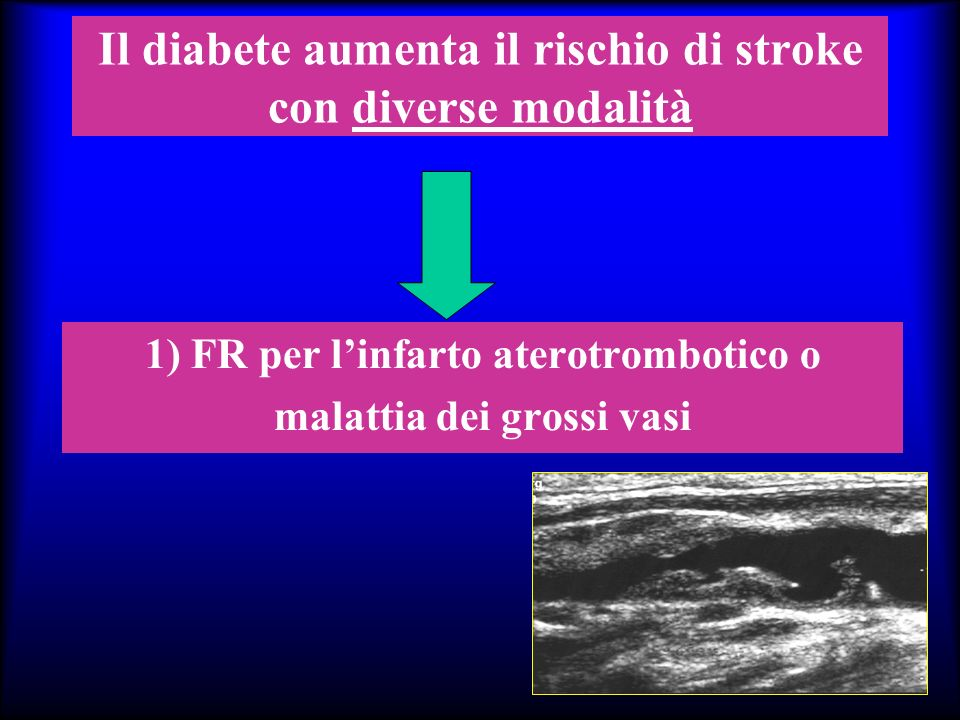 Il diabete aumenta il rischio di stroke con diverse modalità