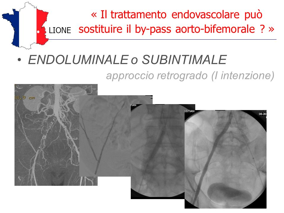ENDOLUMINALE o SUBINTIMALE