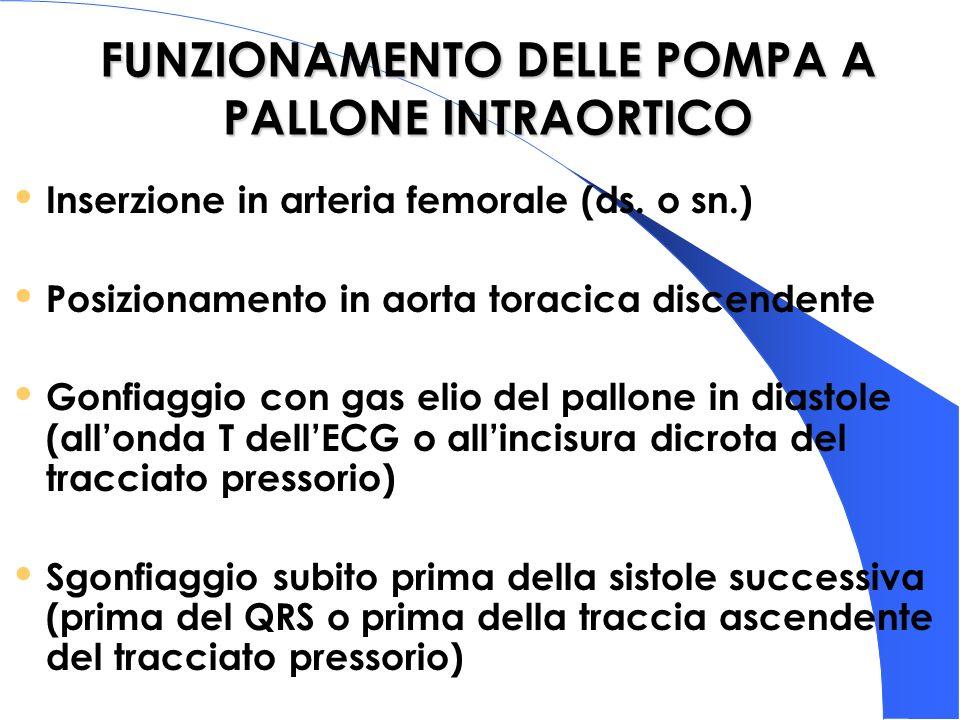 FUNZIONAMENTO DELLE POMPA A PALLONE INTRAORTICO