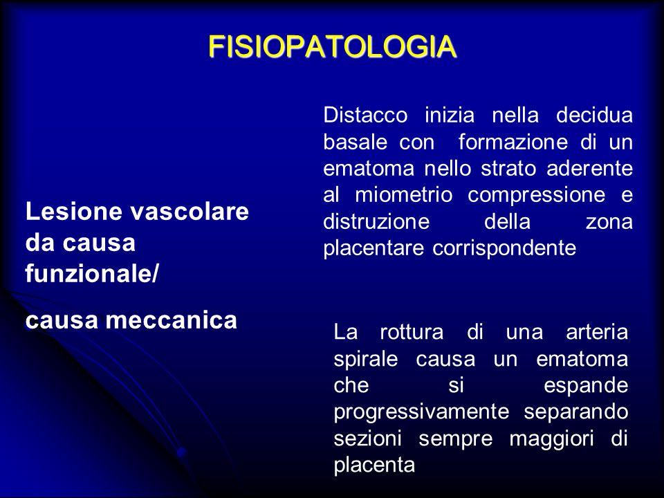 FISIOPATOLOGIA Lesione vascolare da causa funzionale/ causa meccanica