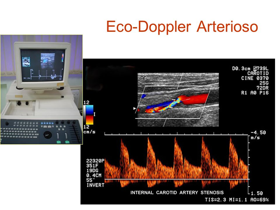 Eco-Doppler Arterioso