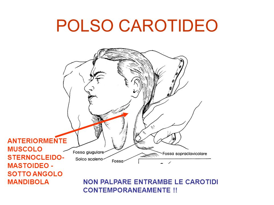 POLSO CAROTIDEO ANTERIORMENTE MUSCOLO STERNOCLEIDO- MASTOIDEO -