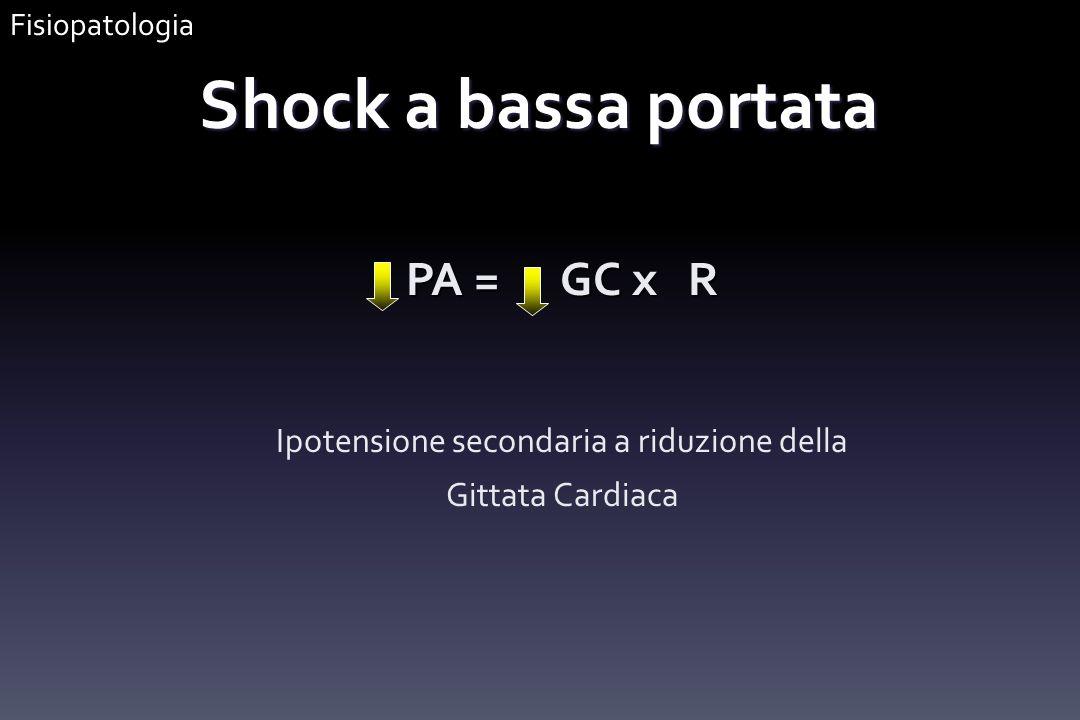 PA = GC x R Ipotensione secondaria a riduzione della Gittata Cardiaca