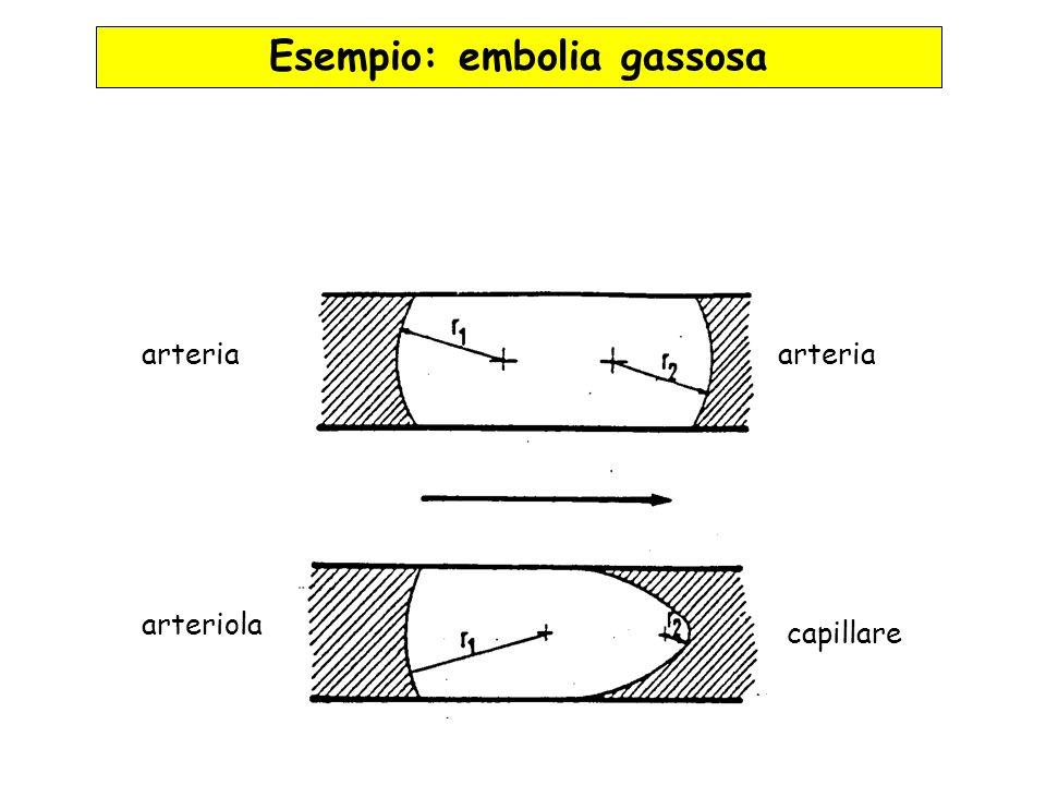 Esempio: embolia gassosa
