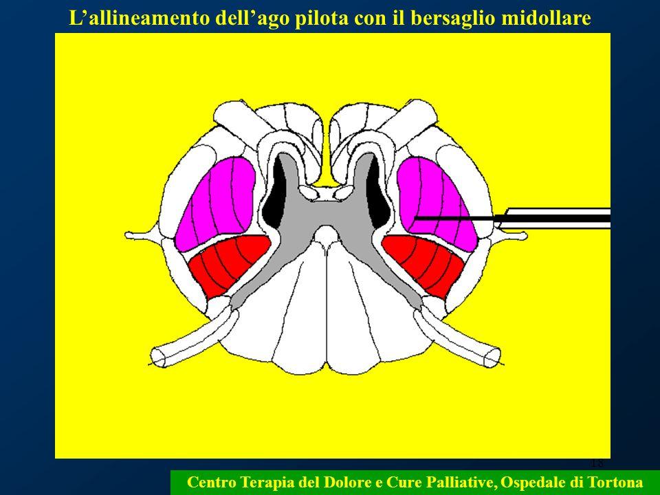 L'allineamento dell'ago pilota con il bersaglio midollare