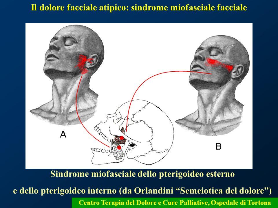 Il dolore facciale atipico: sindrome miofasciale facciale