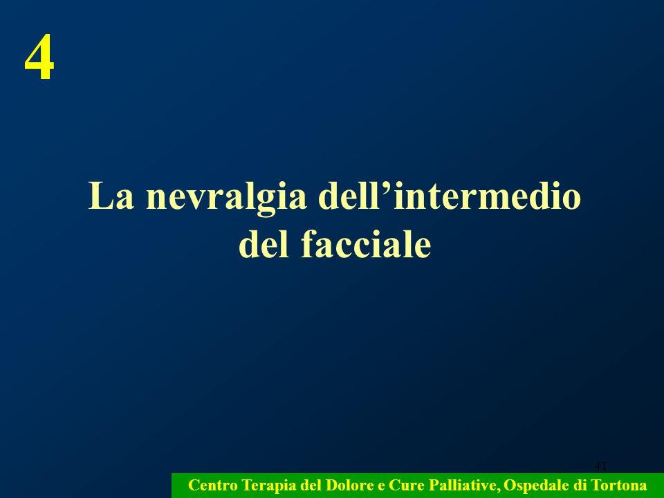 4 La nevralgia dell'intermedio del facciale
