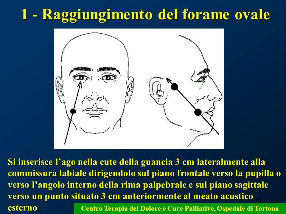 1 - Raggiungimento del forame ovale