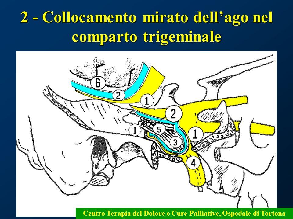2 - Collocamento mirato dell'ago nel comparto trigeminale