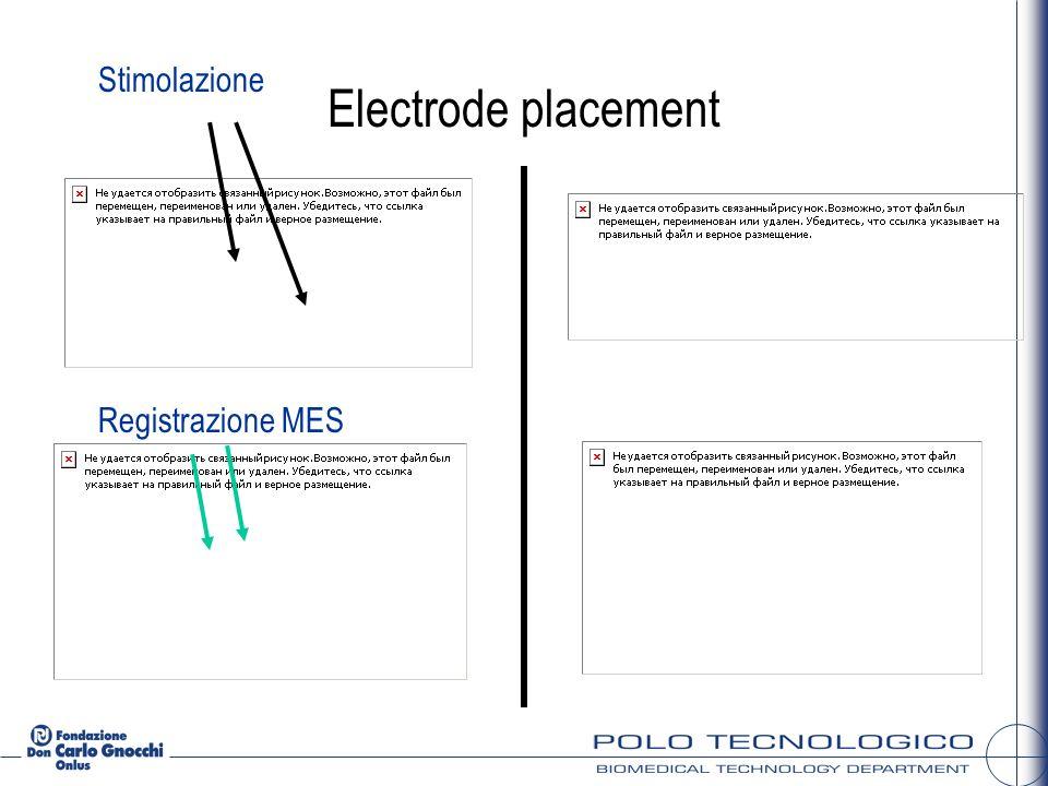 Stimolazione Electrode placement Registrazione MES