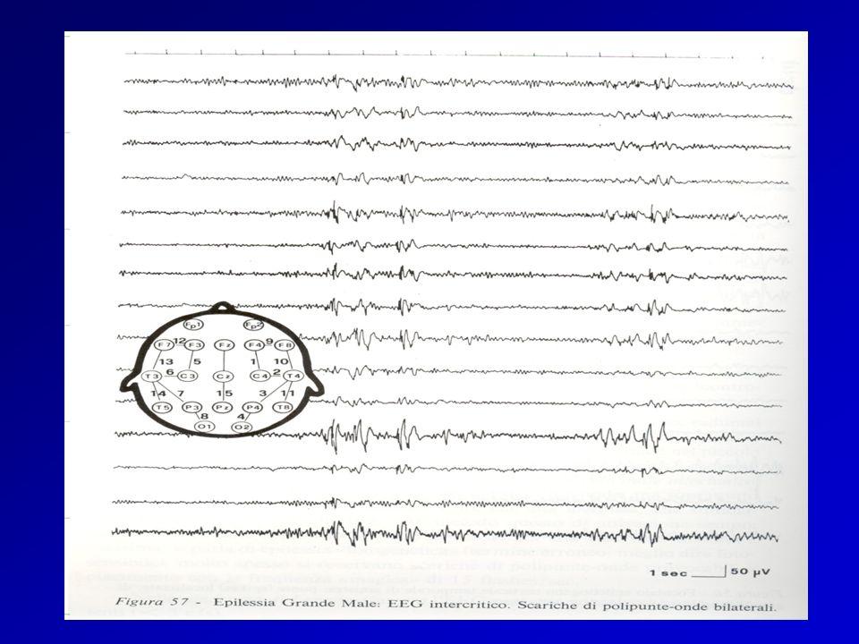 EEG GM