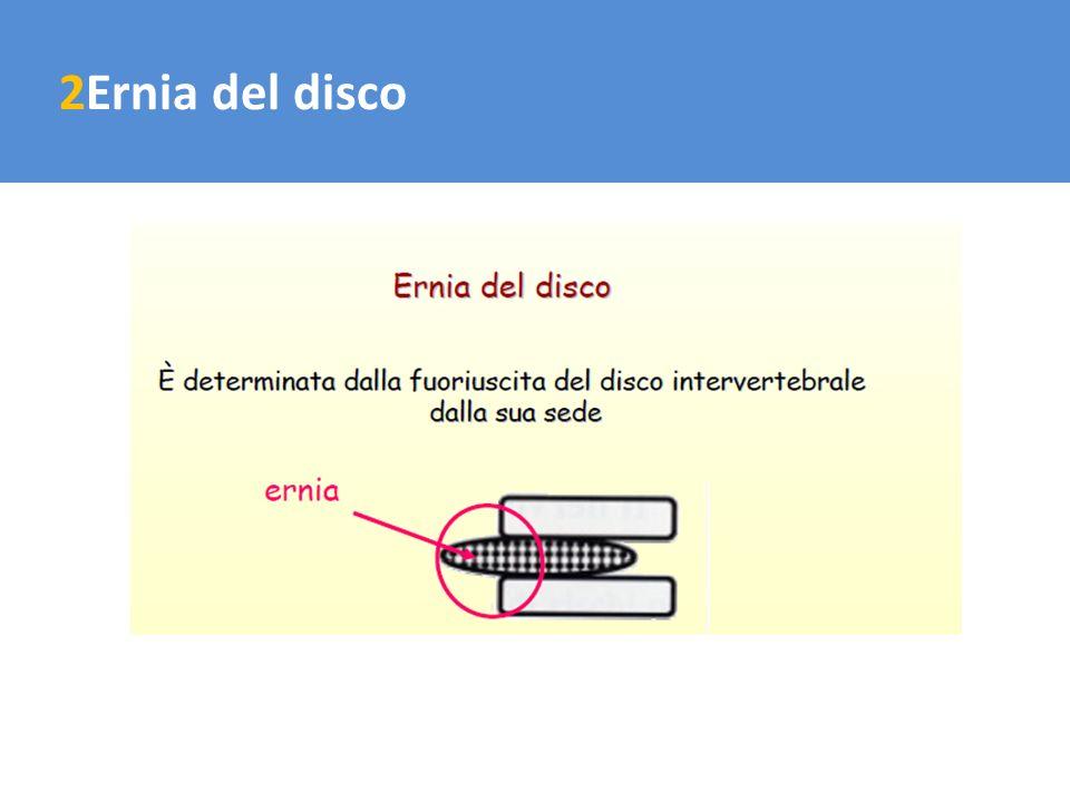 2Ernia del disco