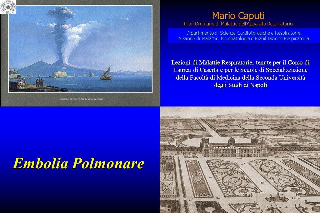 Embolia Polmonare Mario Caputi