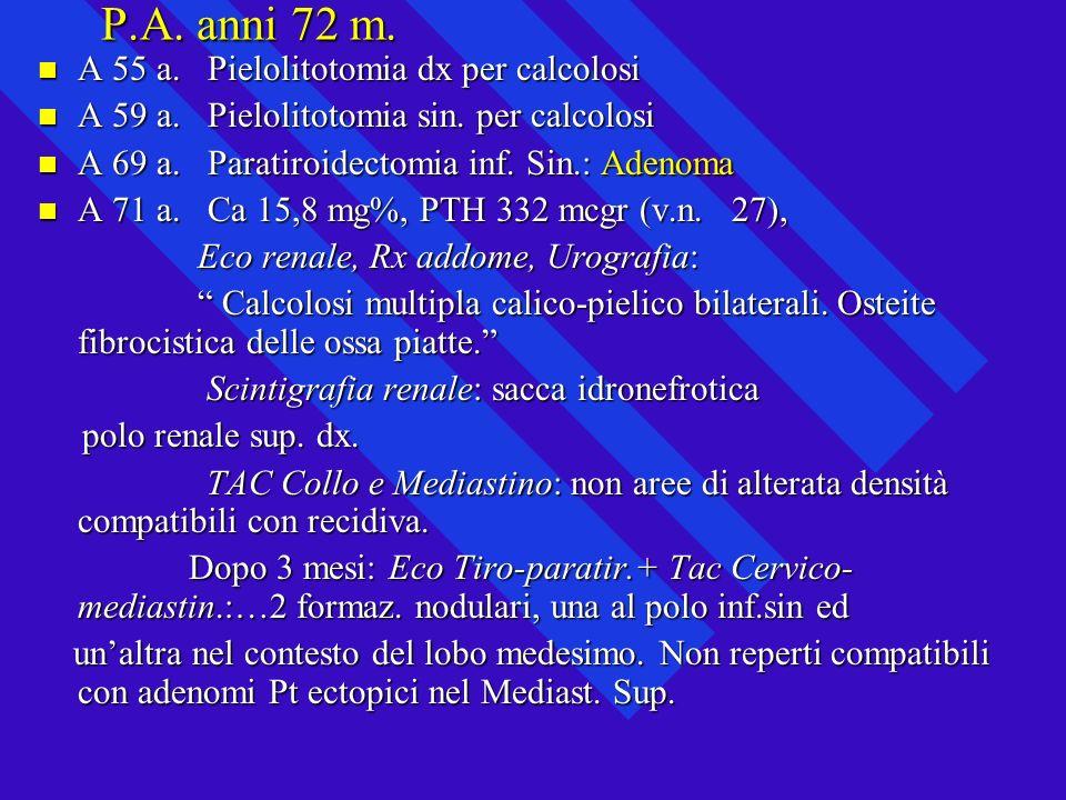 P.A. anni 72 m. A 55 a. Pielolitotomia dx per calcolosi