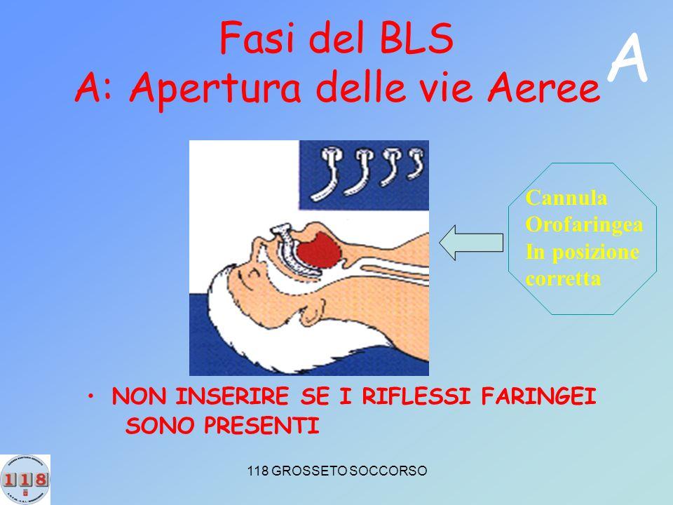 Fasi del BLS A: Apertura delle vie Aeree