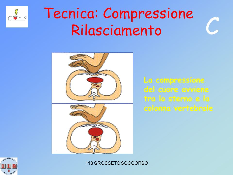 Tecnica: Compressione Rilasciamento