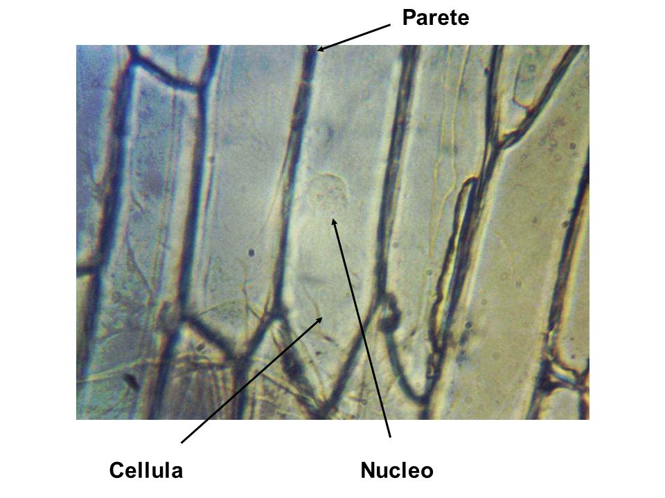Parete Cellula Nucleo