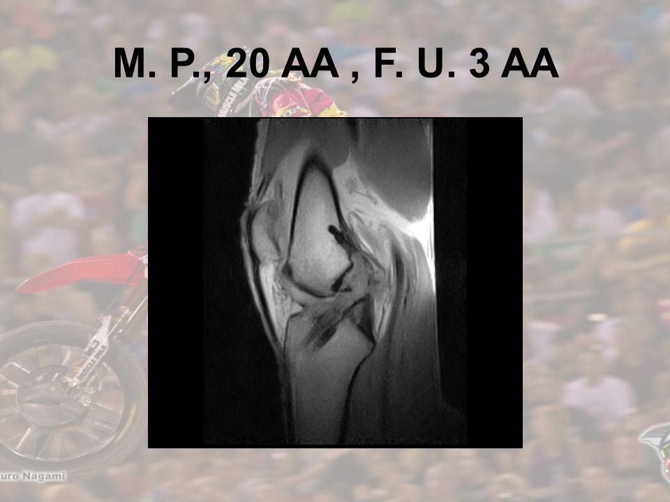 M. P., 20 AA , F. U. 3 AA