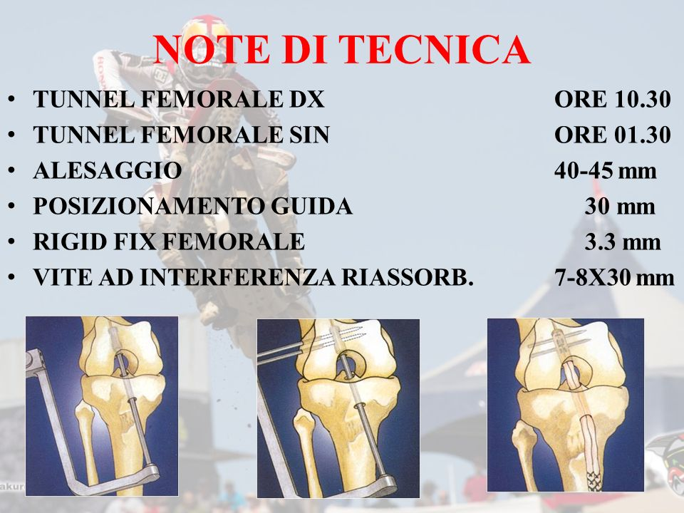 NOTE DI TECNICA TUNNEL FEMORALE DX ORE 10.30