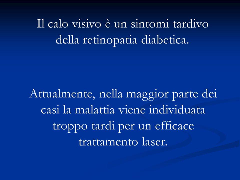 Il calo visivo è un sintomi tardivo della retinopatia diabetica.