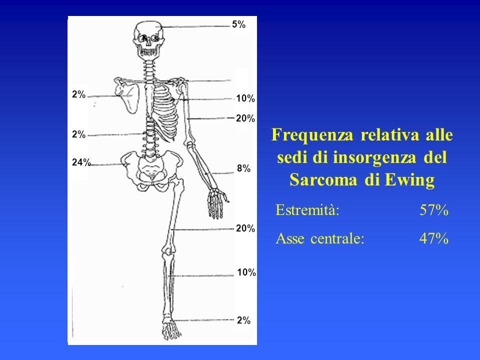 Frequenza relativa alle sedi di insorgenza del Sarcoma di Ewing