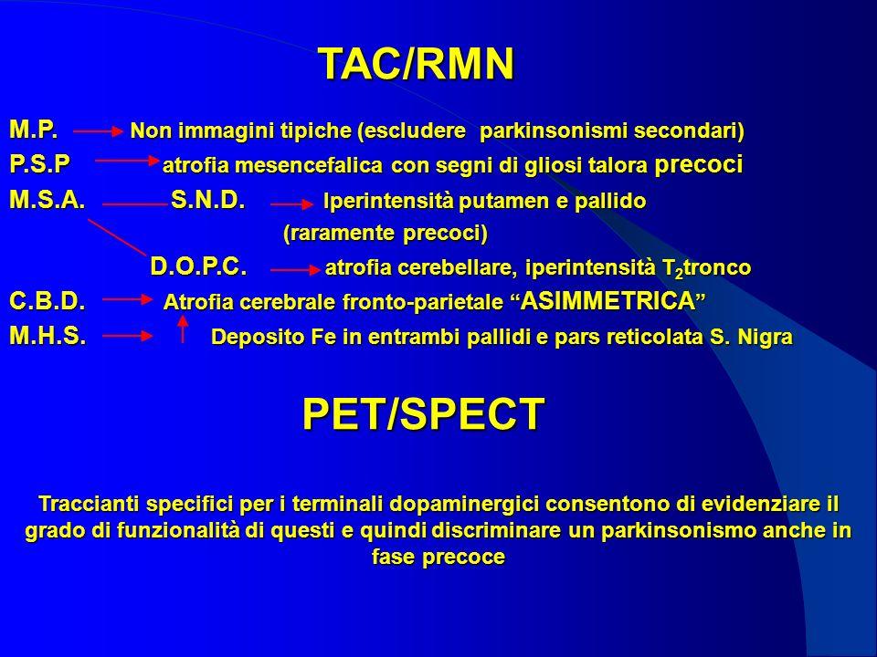TAC/RMN M.P. Non immagini tipiche (escludere parkinsonismi secondari)