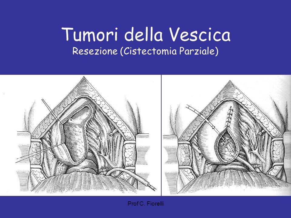 Tumori della Vescica Resezione (Cistectomia Parziale)