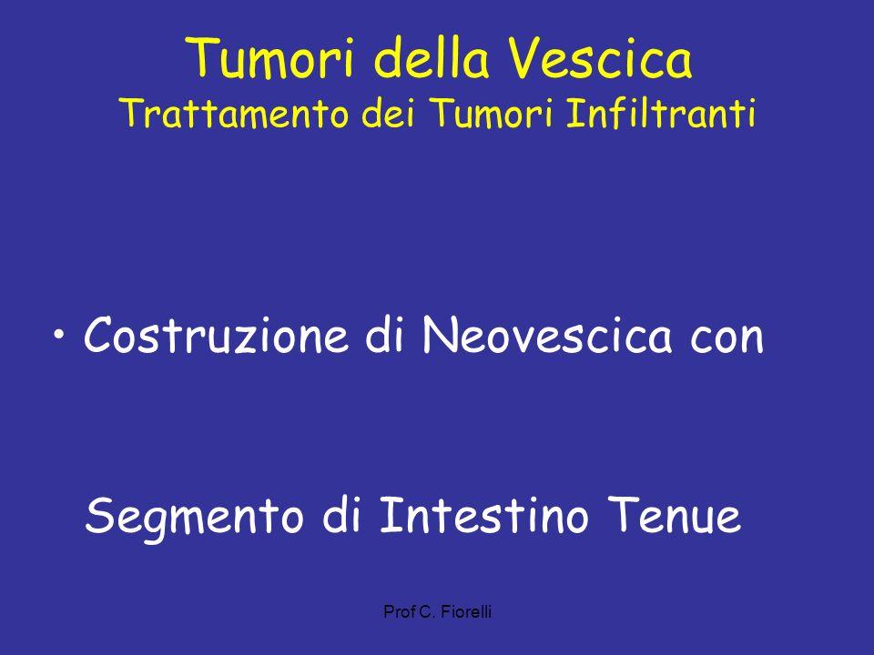 Tumori della Vescica Trattamento dei Tumori Infiltranti