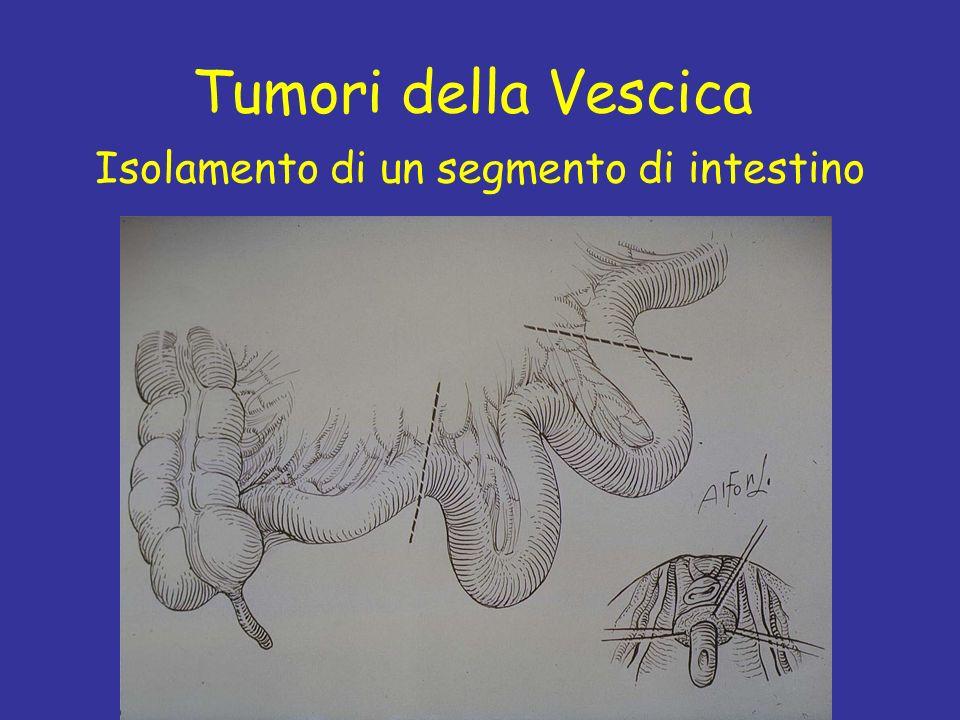 Tumori della Vescica Isolamento di un segmento di intestino