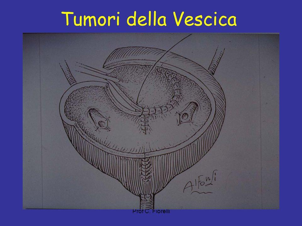 Tumori della Vescica Prof C. Fiorelli 18