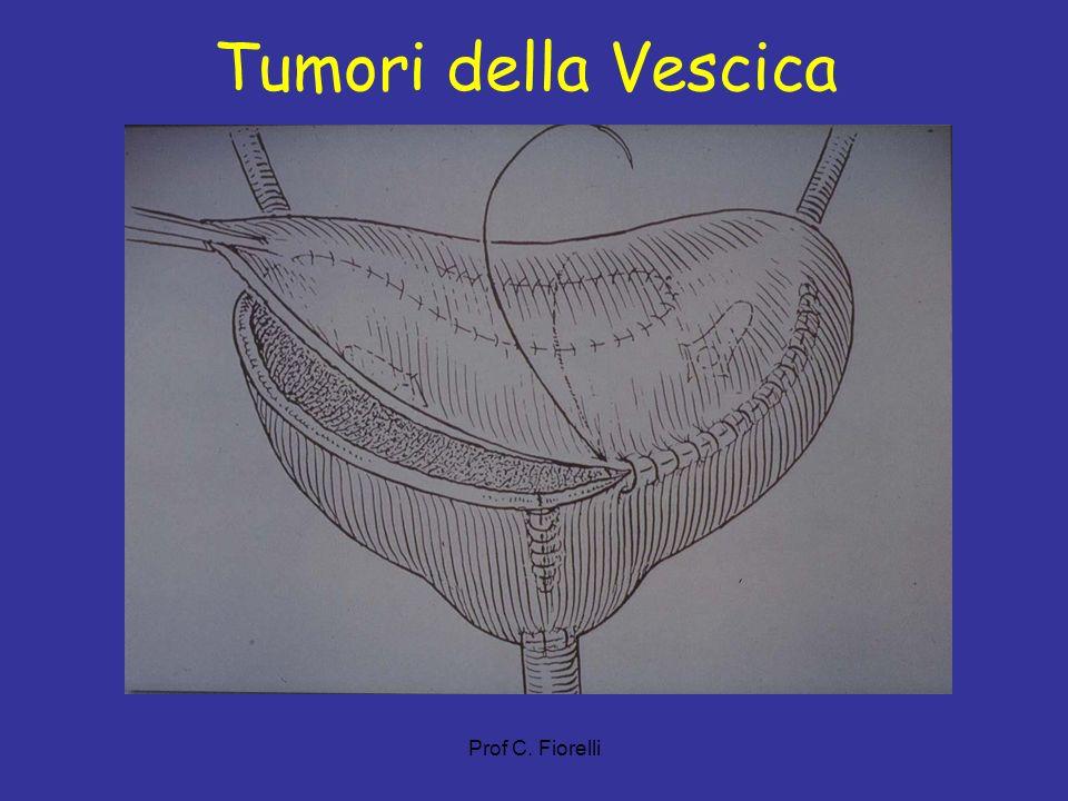 Tumori della Vescica Prof C. Fiorelli 19